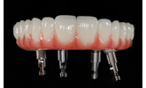 Learn more about zirconia and implant-supported hybrid restorations!