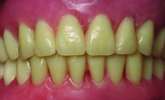 Learn more about the principles of digital dentures, including manufacturing!