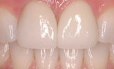 Learn more about the evolution of adhesive dentistry!