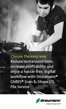 Choose the easy way: Hassle-free, digital workflow with Straumann CARES Scan & Shape STL File Service.