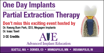 One day implants - Advanced Implant Education