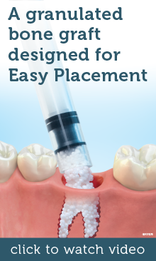 A granulated bone graft designed for Easy Placement