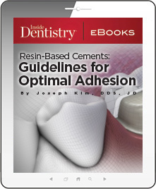 Resin-Based Cements: Guidelines for Optimal Adhesion