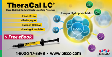 TheraCal LC Resin-modified Calcium Silicate Liner/Pulp Protectant