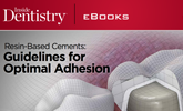 Learn more on the guidelines for optimal adhesion from resin-based cements!