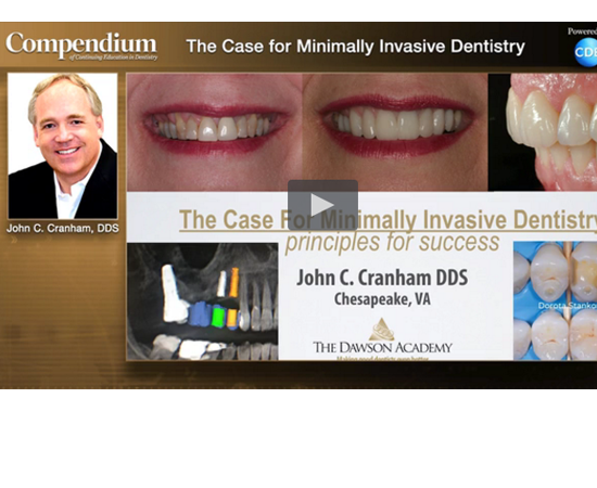 Learn more about what should considered in minimally invasive dentistry!