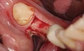 Learn more about placing implants in sites lacking kerantinized tissue!