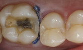 Learn more about how translucency matters for posterior restorations!