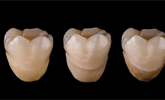 Learn more about the factors that affect zirconia!