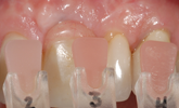 Learn more about how ceramic veneers can be used for interdental papillae reconstruction!