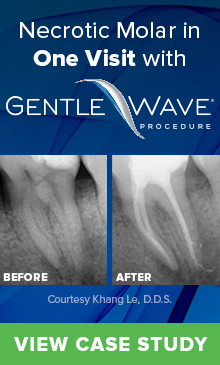 Gentle Wave - Necrotic molar in one visit - download case study!