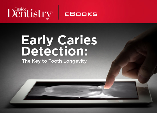 Learn more about interproximal caries and detection without X-Ray from this eBook!
