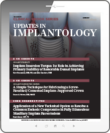 Updates in Implantology