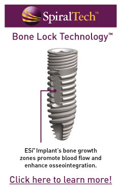 SpiralTech - Bone Lock Technology