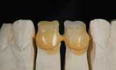 Learn more about how the technician successfully matched a new crown with ceramic materials!