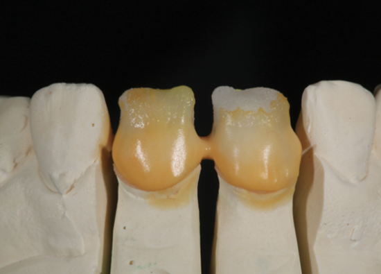 Learn more about how ceramic materials were used to match existing crowns!
