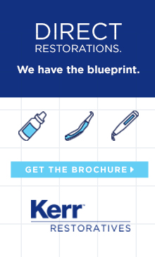Direct Restorations - We have the blueprint.