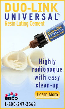 Duo-Link Universal Resin Luting Cement!
