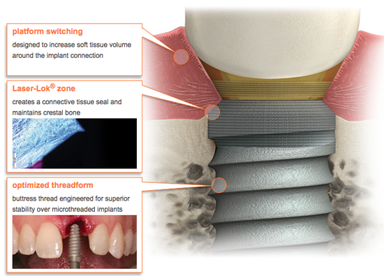 Learn more about BioHorizons and its tapered internal plus dental implant system!