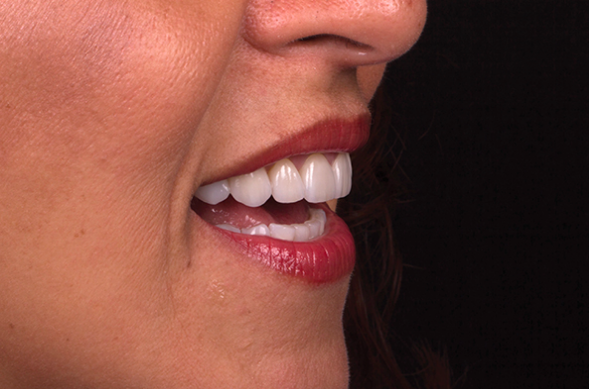 Learn more about how digital smile design can provide predictable results!