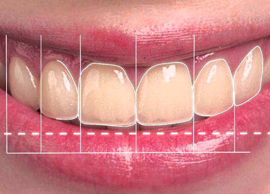 Learn more about how digital imaging has impacted dentistry!