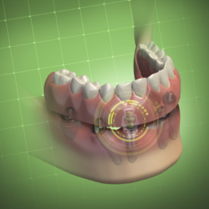 Implant s dental ebook