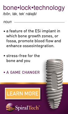 Bone Lock Technology - A feature of the ESi Implant