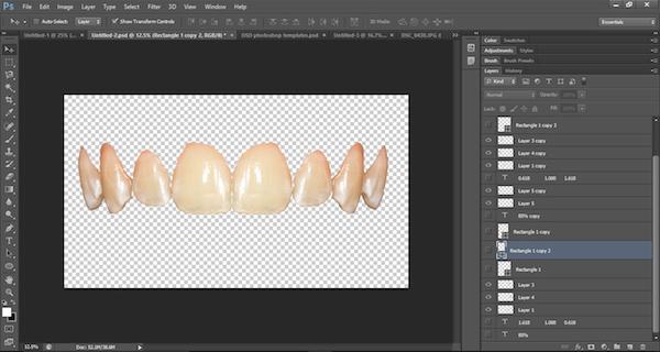 Ten Steps To Create Virtual Smile Design Templates With Adobe Photoshop Cs6 Compendium