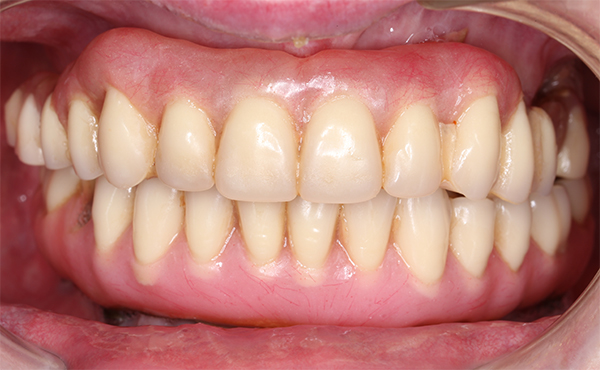 Management of Technical Complications During Full-Mouth