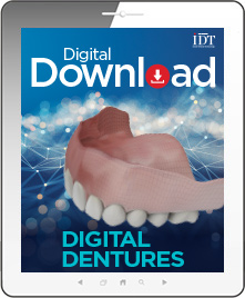 Digital Dentures