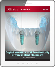 Digital Workflow and Prosthetically Driven Implant Placement