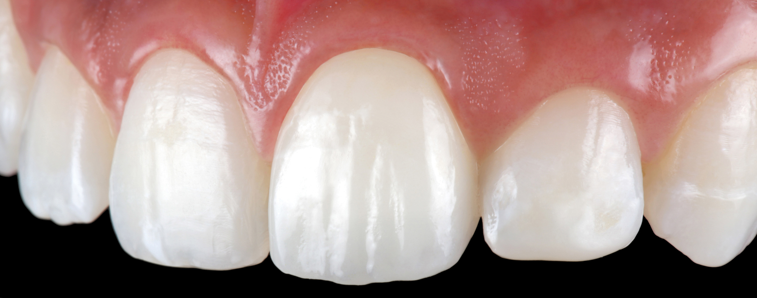 Cementation and Bonding of Zirconia Restorations  Special Issues