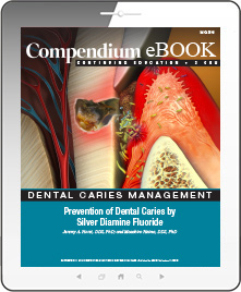 Prevention of Dental Caries by Silver Diamine Fluoride