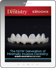 The NOW Generation of Minimally Invasive Dentistry: Guided Prosthetics Delivery