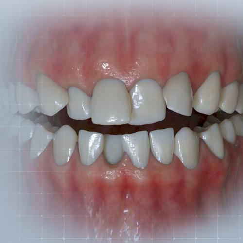 Dental Implant Ebook S