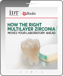 How the Right Multilayer Zirconia Moves Your Laboratory Ahead