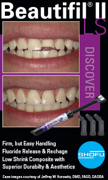 Modern Indirect Restorations: The Right Material for Every