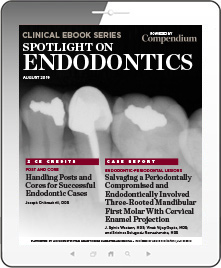 Spotlight on Endodontics
