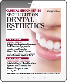 Spotlight on Dental Esthetics