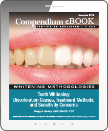 Teeth Whitening: Discoloration Causes, Treatment Methods, and Sensitivity Concerns