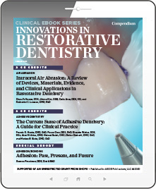 Innovations in Restorative Dentistry