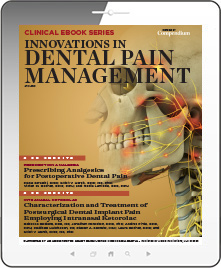 Innovations in Dental Pain Management