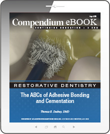 The ABCs of Adhesive Bonding and Cementation