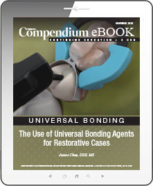 The Use of Universal Bonding Agents for Restorative Cases