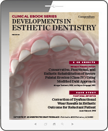 Developments in Esthetic Dentistry