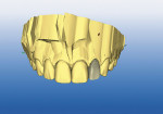 Figure  2  DIGITIAL CAPABILITIES While the centrals were milling, the remaining incisors were designed in tandem sequence for proficient design and milling time (approximately 7 to 9 minutes milling time per tooth).