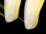Figure 32  Most unworn incisors will exhibit a halo but not all teeth with incisal wear facets will yield the visual halo effect. The wear facet must have a buccal-facing angle.