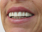 Figure 1  The existing smile with maxillary complete and mandibular implant-retained overdenture. Note the Class II relationship.