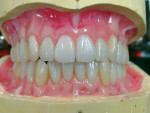 Figure 7  After clinical esthetic wax try-in, verification denture waxing was completed and prepared for investing.
