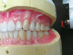 Figure 8  After clinical esthetic wax try-in, verification denture waxing was completed and prepared for investing.